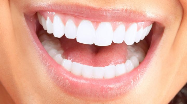 3 Tips For A Brighter Smile This Spring